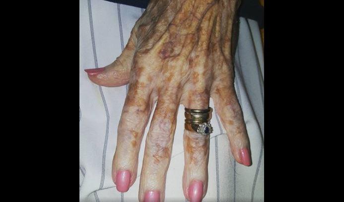 A néni nem akarta felhívni a figyelmet kezeire, mert csúnyának érezte őket: az ápolónő fontos igazsággal nyugtatta meg